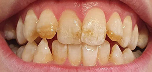 TakeHome-Whitening_After